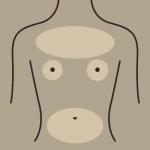 لیزر شکم، سینه و نوک پستان - لیزر سوپرانو - کلینیک رخ آرا