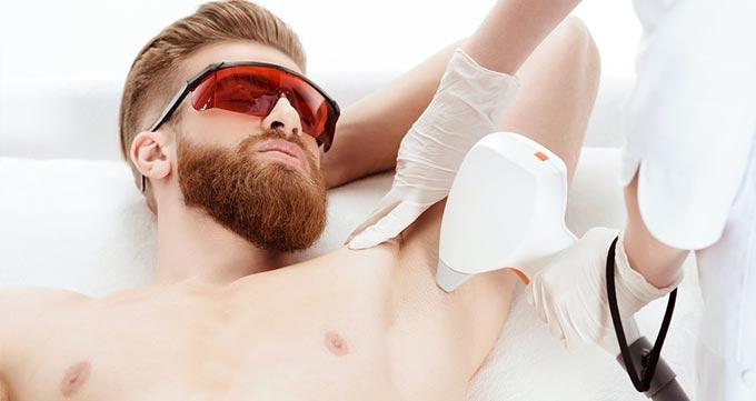 آمادگی قبل از درمان لیزر موهای زائد مردان