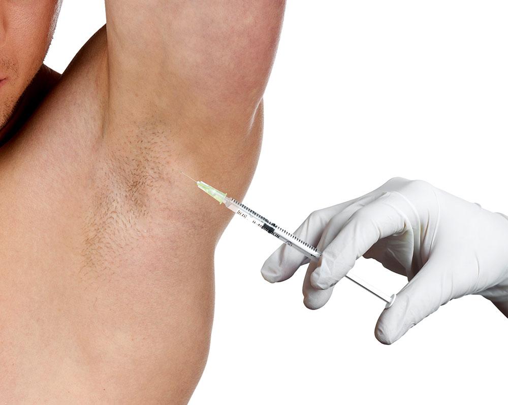بوتاکس درمانی برای تعریق بیش ازحد زیربغل