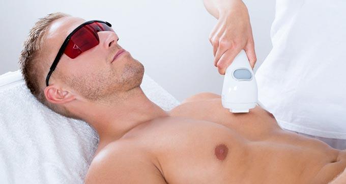 انواع لیزر مو در مردان