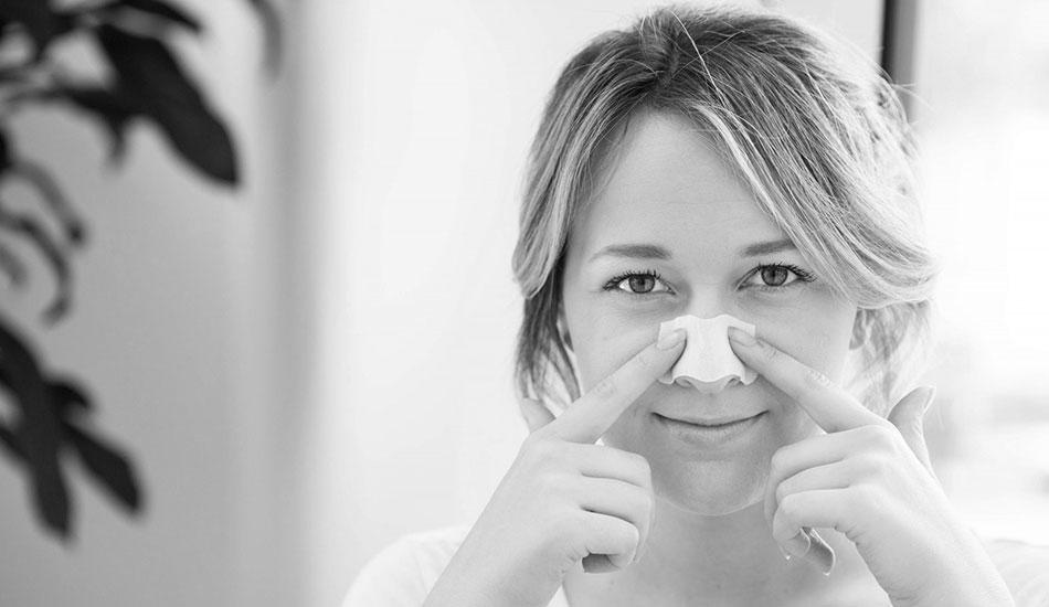 درمان جوش سرسیاه - کلینیک پوست و مو رخ آرا