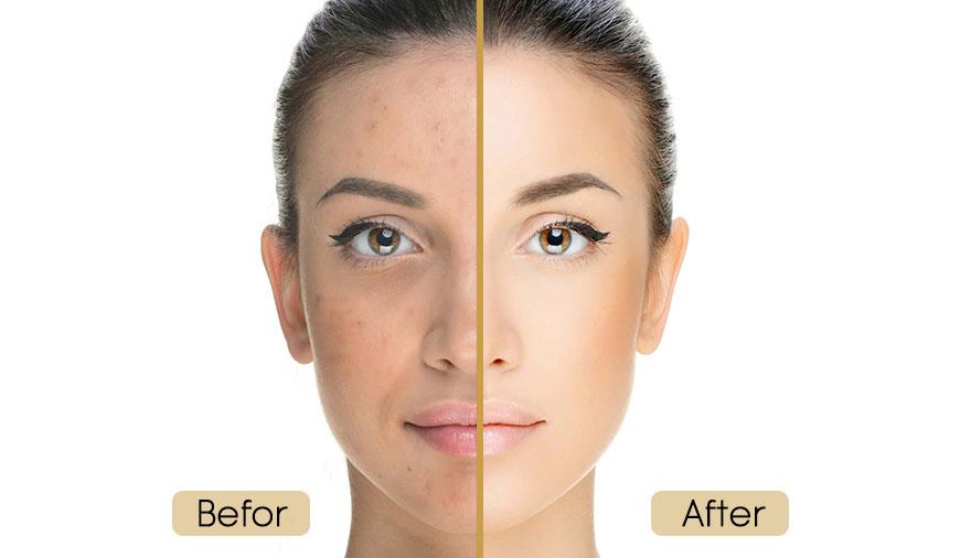 مراقبت های قبل و بعد از میکرونیدلینگ