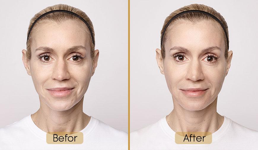 مراقبت های قبل و بعد تزریق ژل