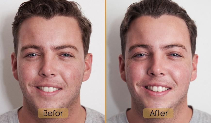قبل و بعد از میکرودرم ابریژن