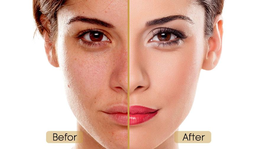 قبل و بعد لایه برداری شیمیایی