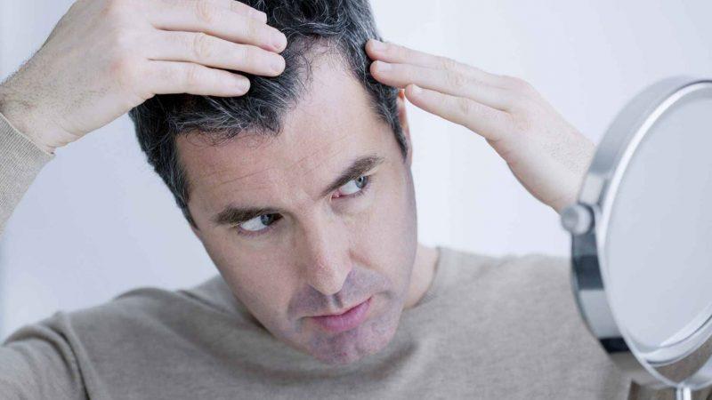 مزوتراپی مو و درمان ریزش مو