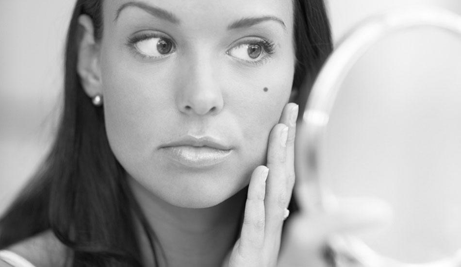 علل،علائم و درمان خال - کلینیک پوست و مو رخ آرا