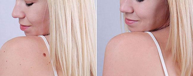 درمان خال - کلینیک پوست و مو رخ آرا
