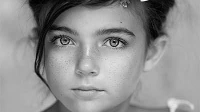 علل ، علائم بروز انواع لکه های پوستی و درمان آن