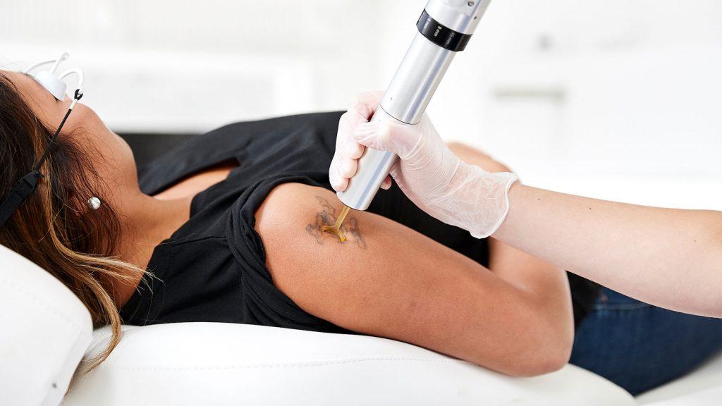 لیزر تاتو و خالکوبی - کلینیک پوست و مو رخ آرا
