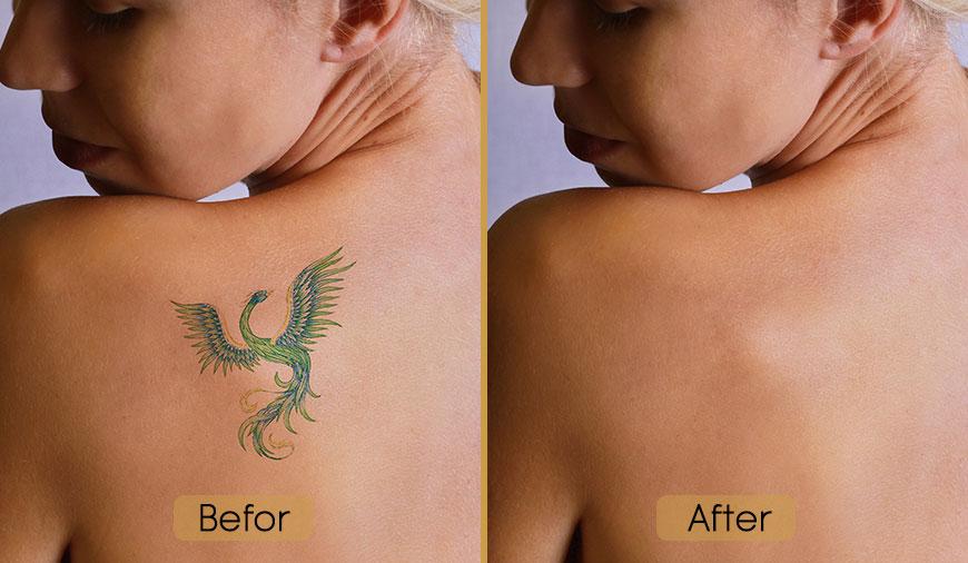 قبل و بعد از پاک کردن تاتو و خالکوبی
