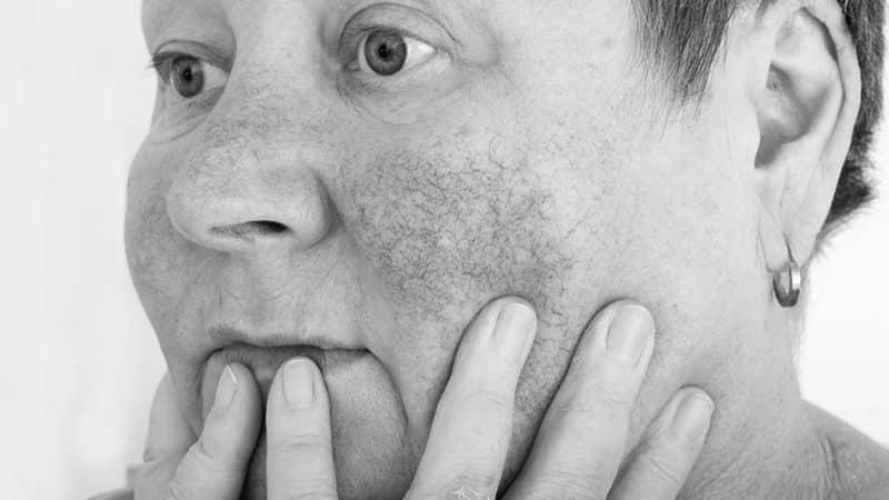 رزاسه (رزاشیا) - روش های درمان - کلینیک رخ آرا