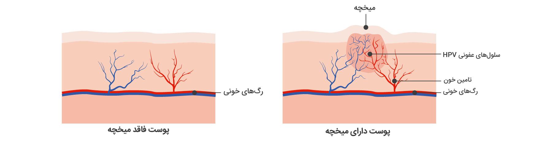 پوست دارای میخچه در کنار پوست فاقد میخچه