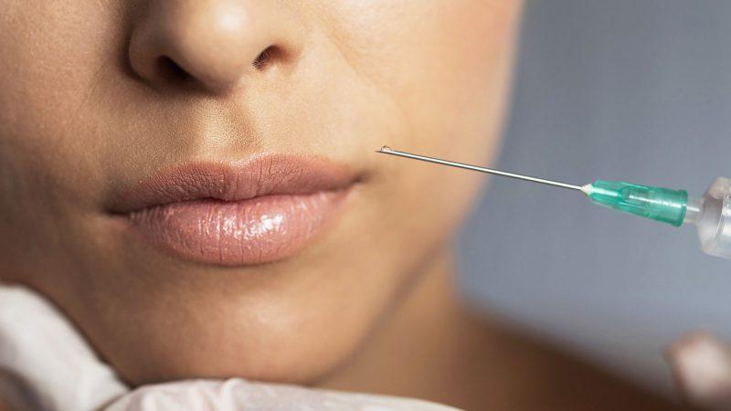 درمان فلج صورت با تزریق ژل