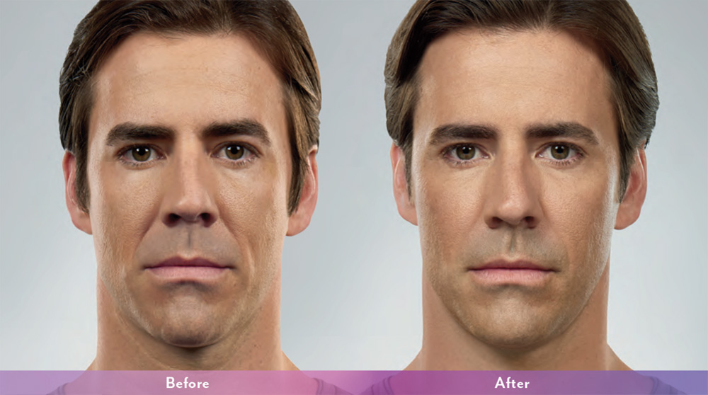 Juvederrm+Before+and+after