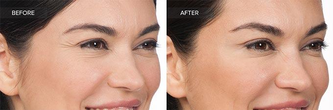 قبل و بعد از درمان خطوط پنجه کلاغی