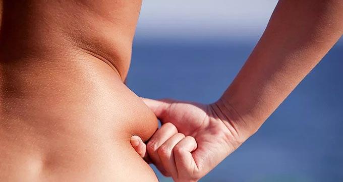لیپوماتیک برای افراد با پوست کم ارتجاع