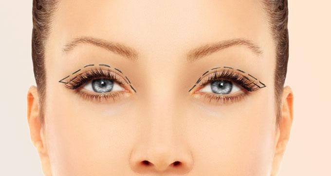 لیفت پلک چشم (جراحی پلک بالا)