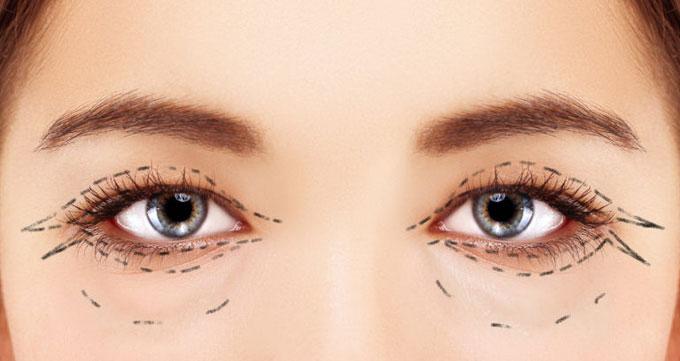 انواع لیفت چشم