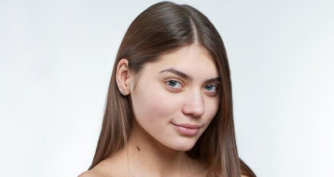 چگونه میتوان با تزریق ژل شقیقه صورت را جوانتر کرد؟