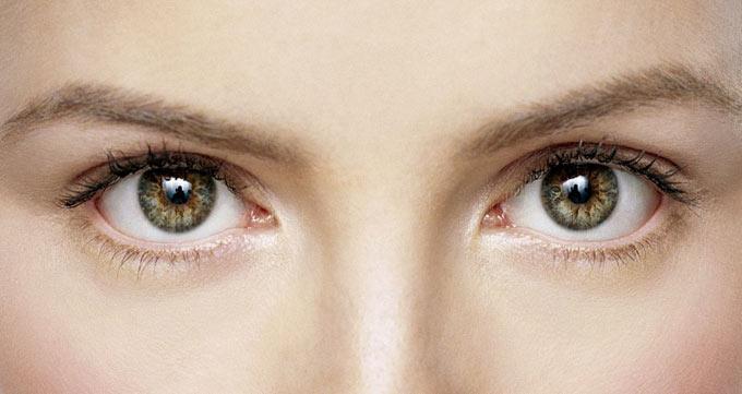 تزریق ژل زیر چشم برای درمان پُف زیر چشم