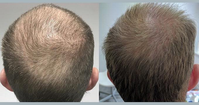 ریزش مو عارضهای پیشرونده است