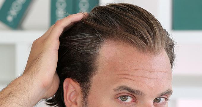 کاشت مو به روش FUE ظاهر و احساس شما را بهبود میبخشد