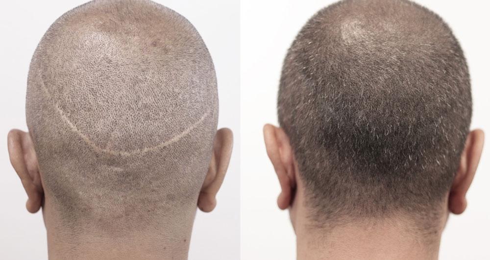 کاشت مو به روش FUT