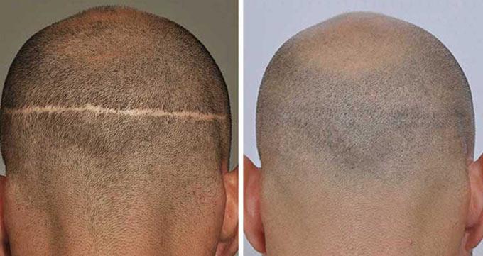 معایب کاشت مو به روش FUT چیست؟