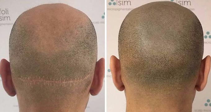 دستورالعملهای پیش از کاشت مو به روش FUT