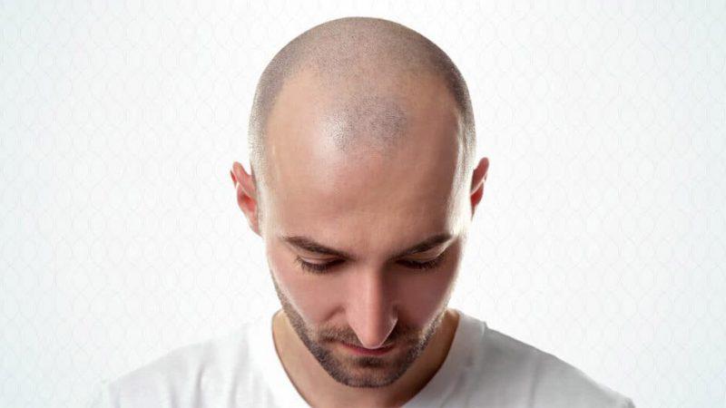 کاشت مو تضمینی در کلینیک پوست و مو رخ آرا