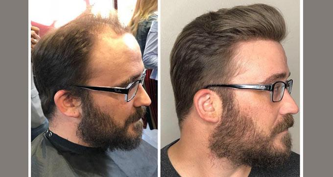 کاشت مو چسبی
