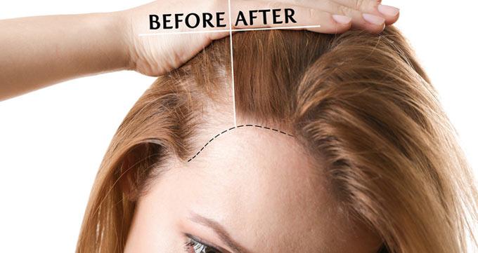 فرآیند کاشت مو به روش PRP