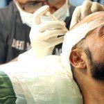 کاشت مو به روش سِیفِر (SAFER)