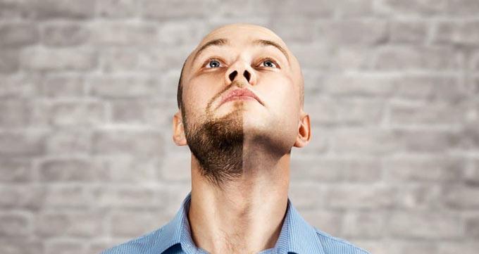 چرا باید کاشت ریش را انجام دهم؟