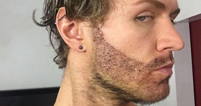 اصول اولیه کاشت ریش، کاشت مو صورت و کاشت خط ریش