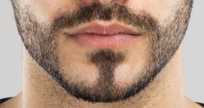 نتیجه عمل کاشت ریش