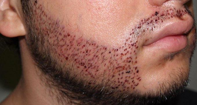 استخراج گرافتهای مو