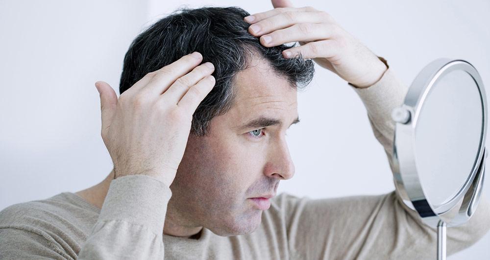 سن مناسب برای کاشت مو به روش FUE