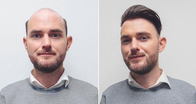 آیا کاشت مو سر درمانی موثر است؟