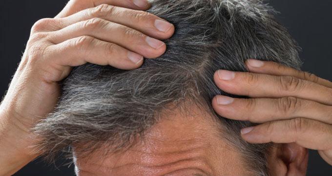 هزینه کاشت مو سر چقدر است؟