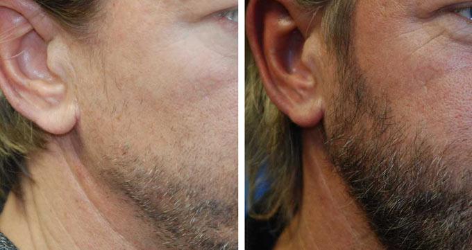 نتایج کاشت موی صورت