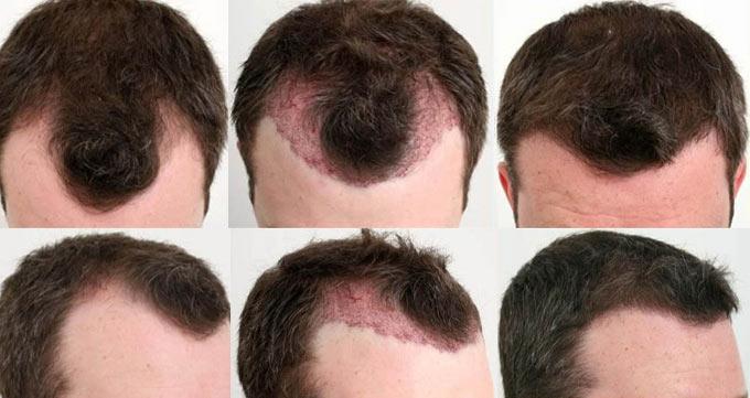 نتایج کاشت مو ثابت به متخصص بستگی دارد