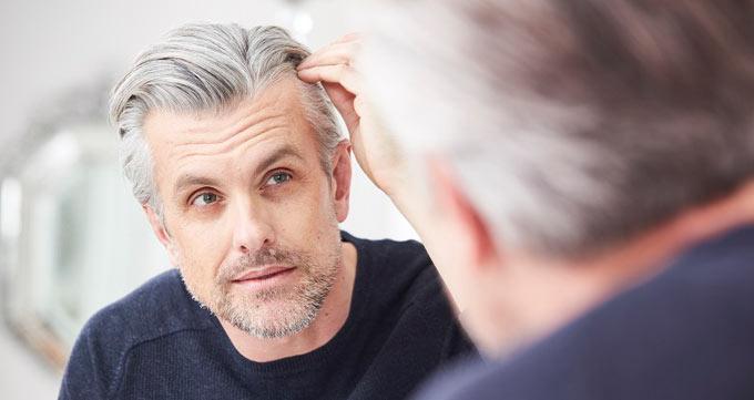 چه کسانی کاندیدای خوبی برای کاشت موی ثابت هستند؟