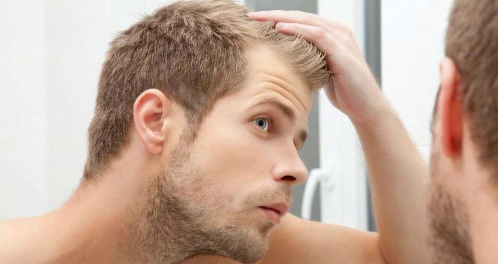 آیا با کاشت مو میتوان موها را پُر پشت کرد؟