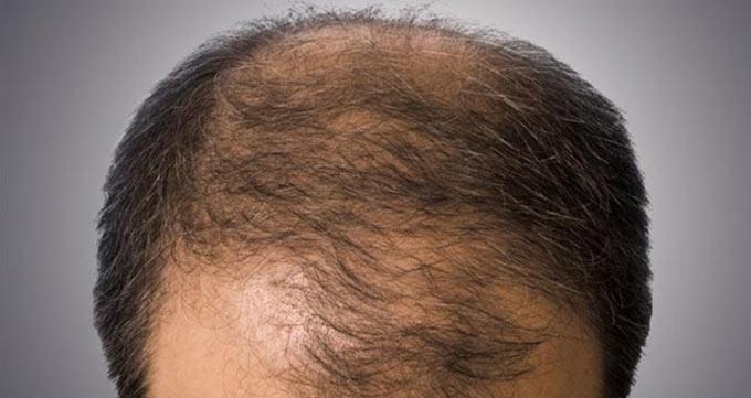 ریزش مو ژنتیکی