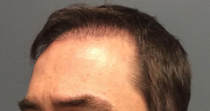 رشد گسترده فولیکولهای جدید مو