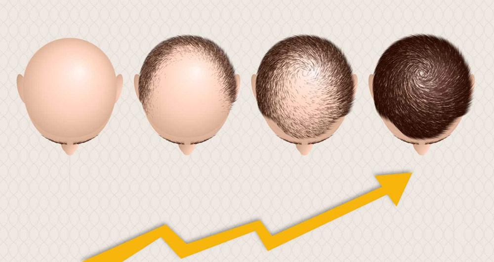 جدول زمانی رشد موها پس از کاشت مو قابل رشد
