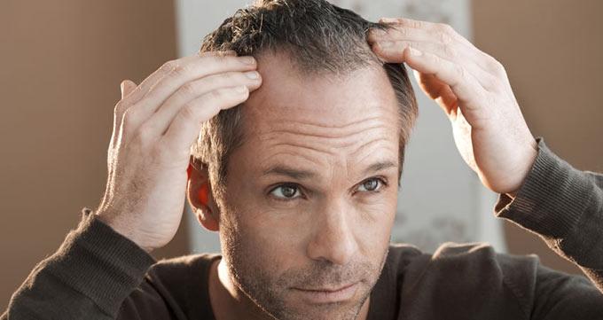 چهار ماه پس از عمل کاشت مو قابل رشد