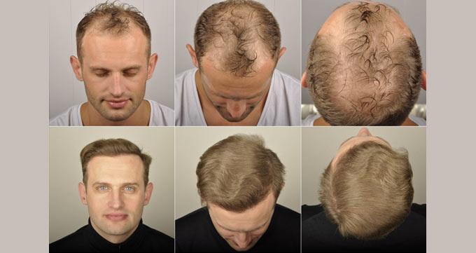 هشت ماه پس از کاشت مو قابل رشد